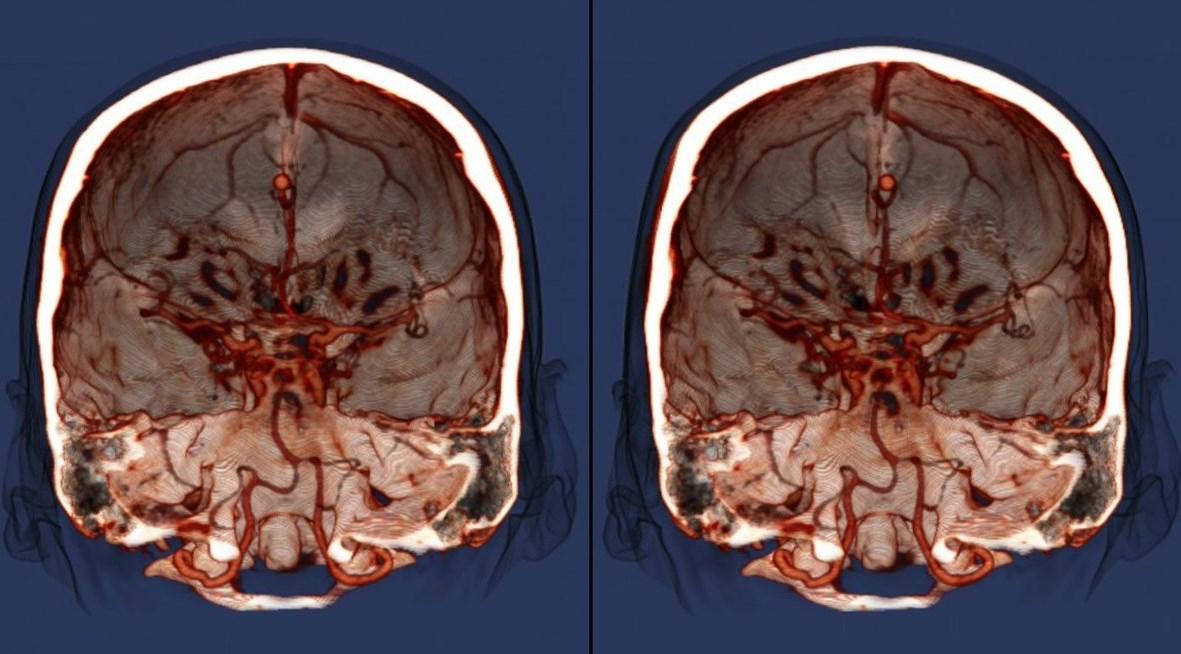 МРТ с контрастом результат