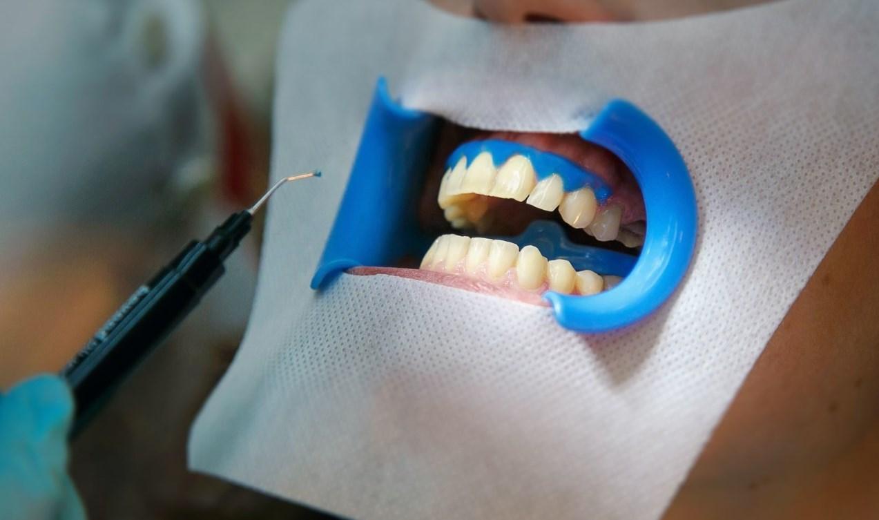 ОТбеливание зубного ряда