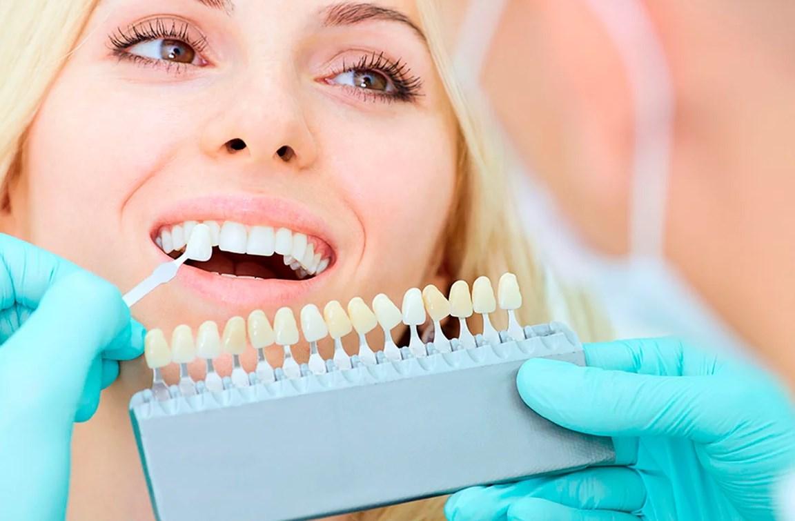 Подготовка к реставрации зубов