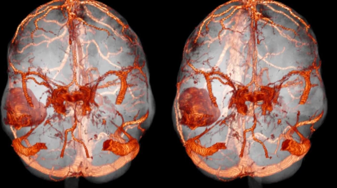 КТ мозга снимок