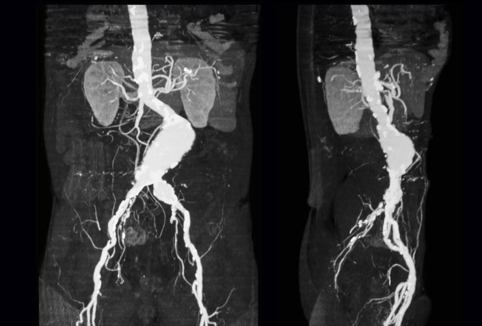 Снимок КТ брюшной аорты