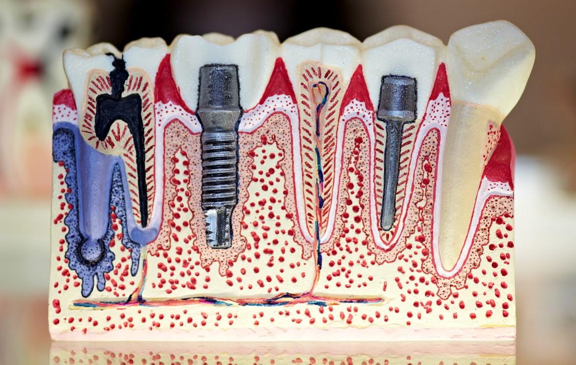 Штифт зубов