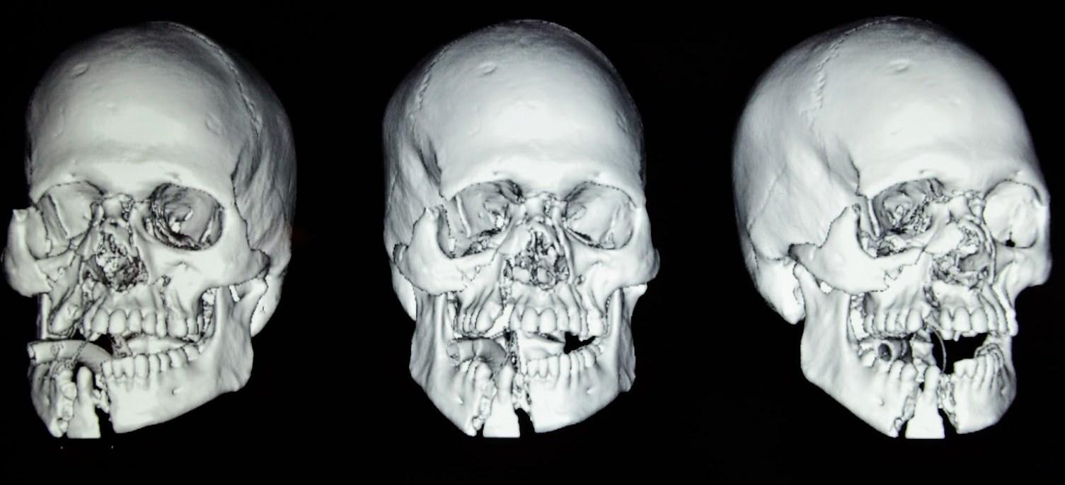 КТ кости черепа