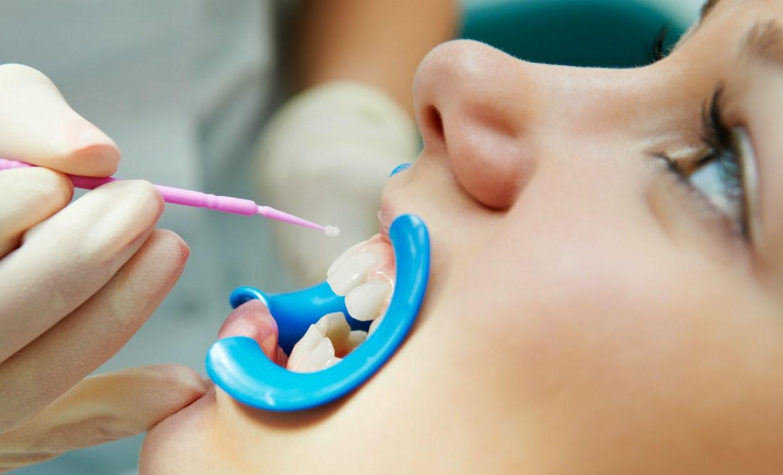 Зубы фторлак