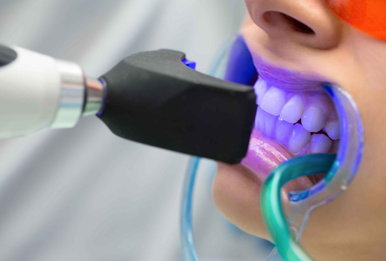 Фотоотбеливание зубов – проведение стоматологической процедуры