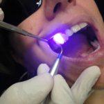 Лазерная имплантация зубов – особенности процедуры