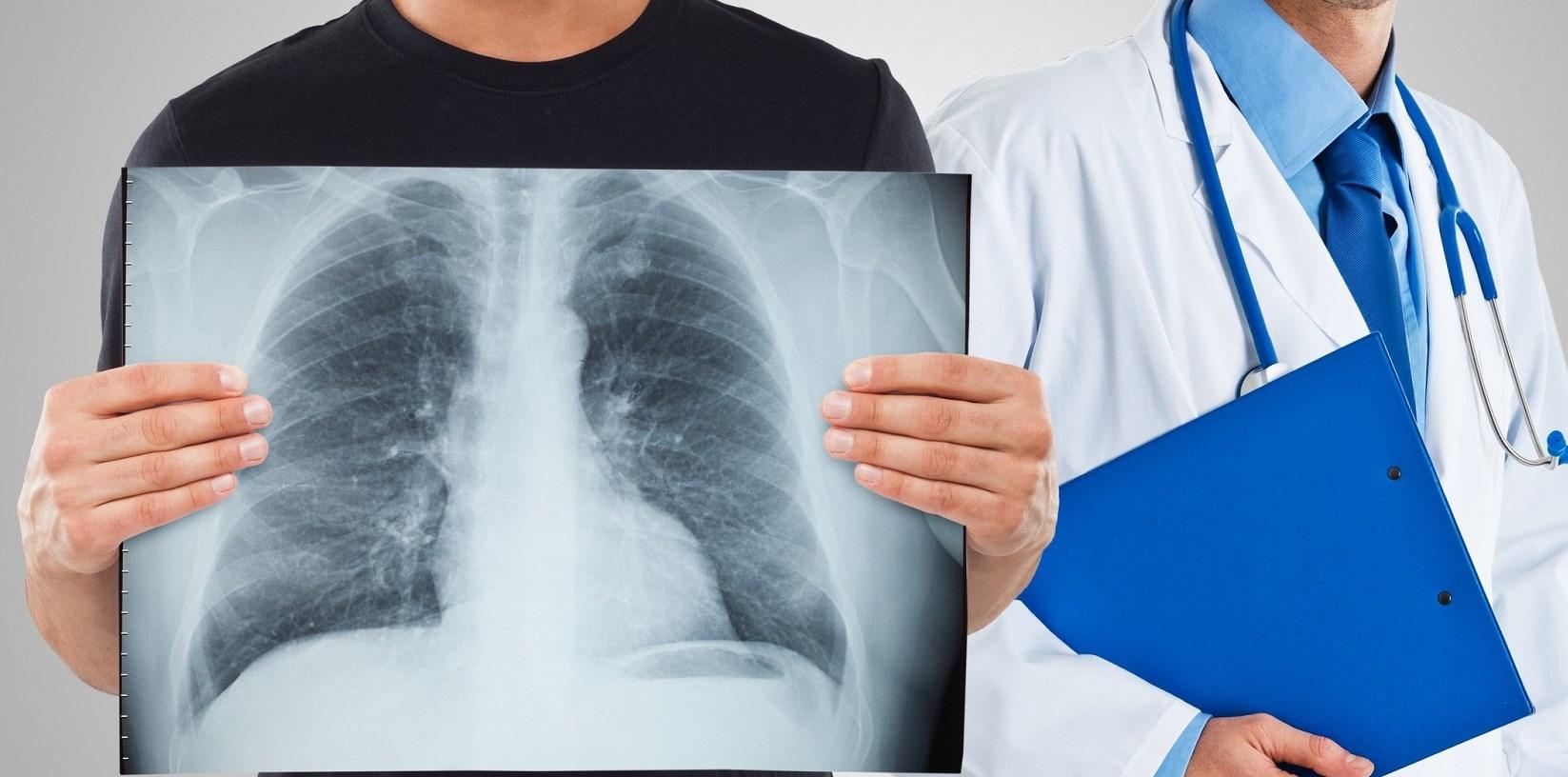 Туберкулез болезнь