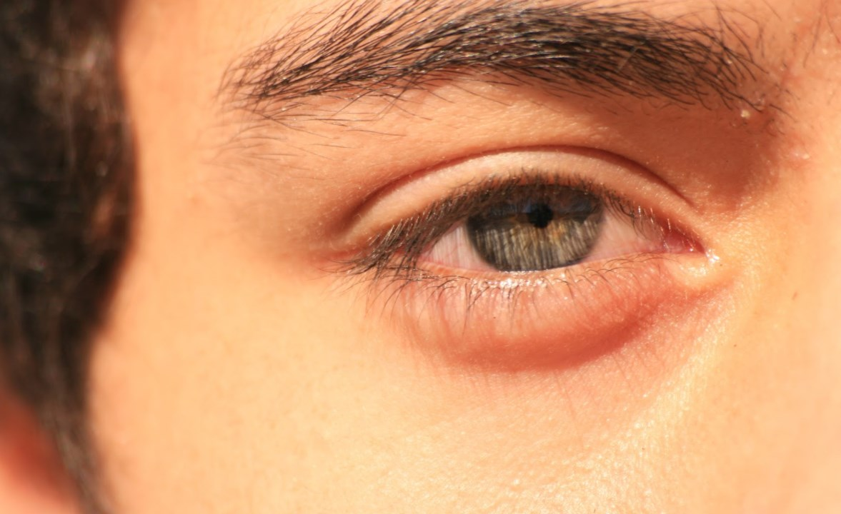 Ячмень глаз