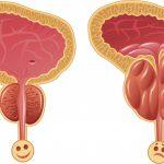 Хронический бактериальный и небактериальный простатит