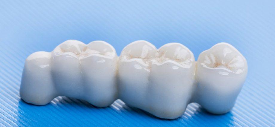 Керамические зубные протезы