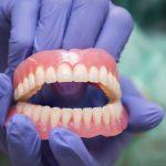 Несъемные зубные протезы – описание процедуры