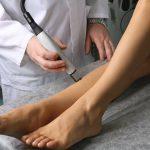 Инновационные эндоваскулярные методы лечения варикозной болезни