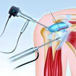 Артроскопия плеча - описание процедуры
