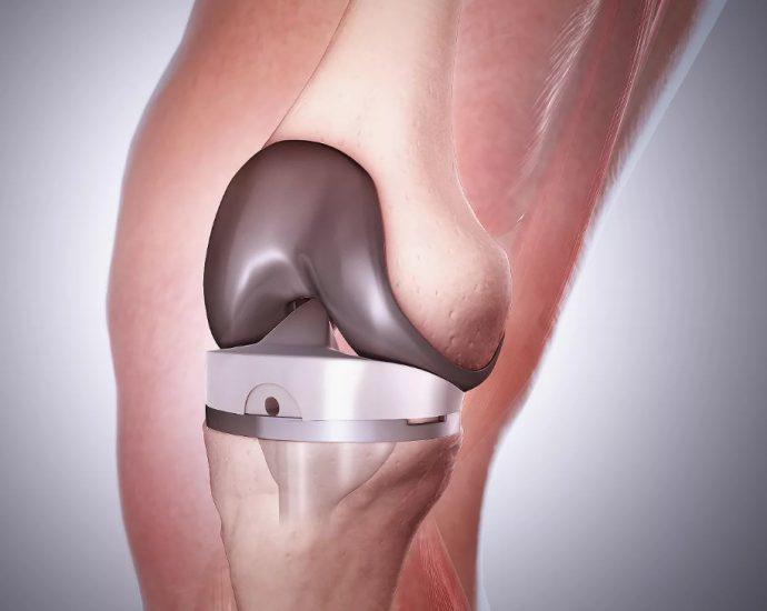 Замена колена