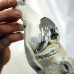 Комплексная или первичная ревизионная (повторная) замена коленного сустава - описание и необходимость процедуры