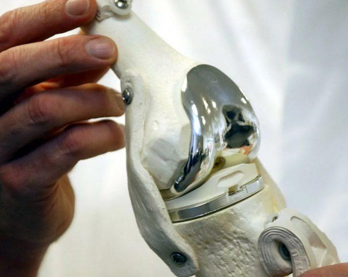 Повторная замена коленного сустава