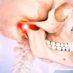Хирургия височно-нижнечелюстного сустава - процедура и восстановление